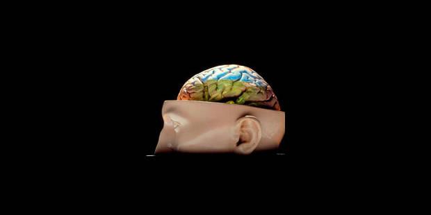 Quand le cerveau ne tourne pas rond - La Libre