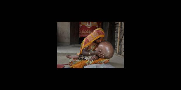 Une petite fille au crâne hypertrophié suscite un élan de solidarité