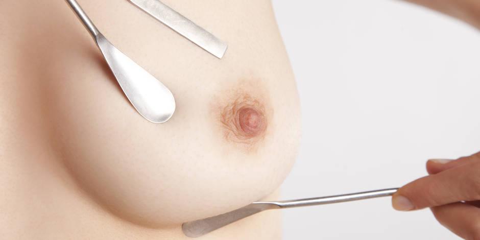 Plus de la moitié des femmes se sont soumises à un dépistage du cancer du sein